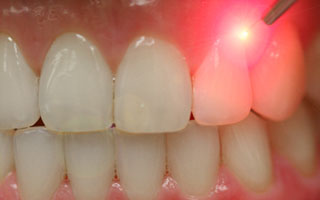 Laser Dental Care in Idaho Falls