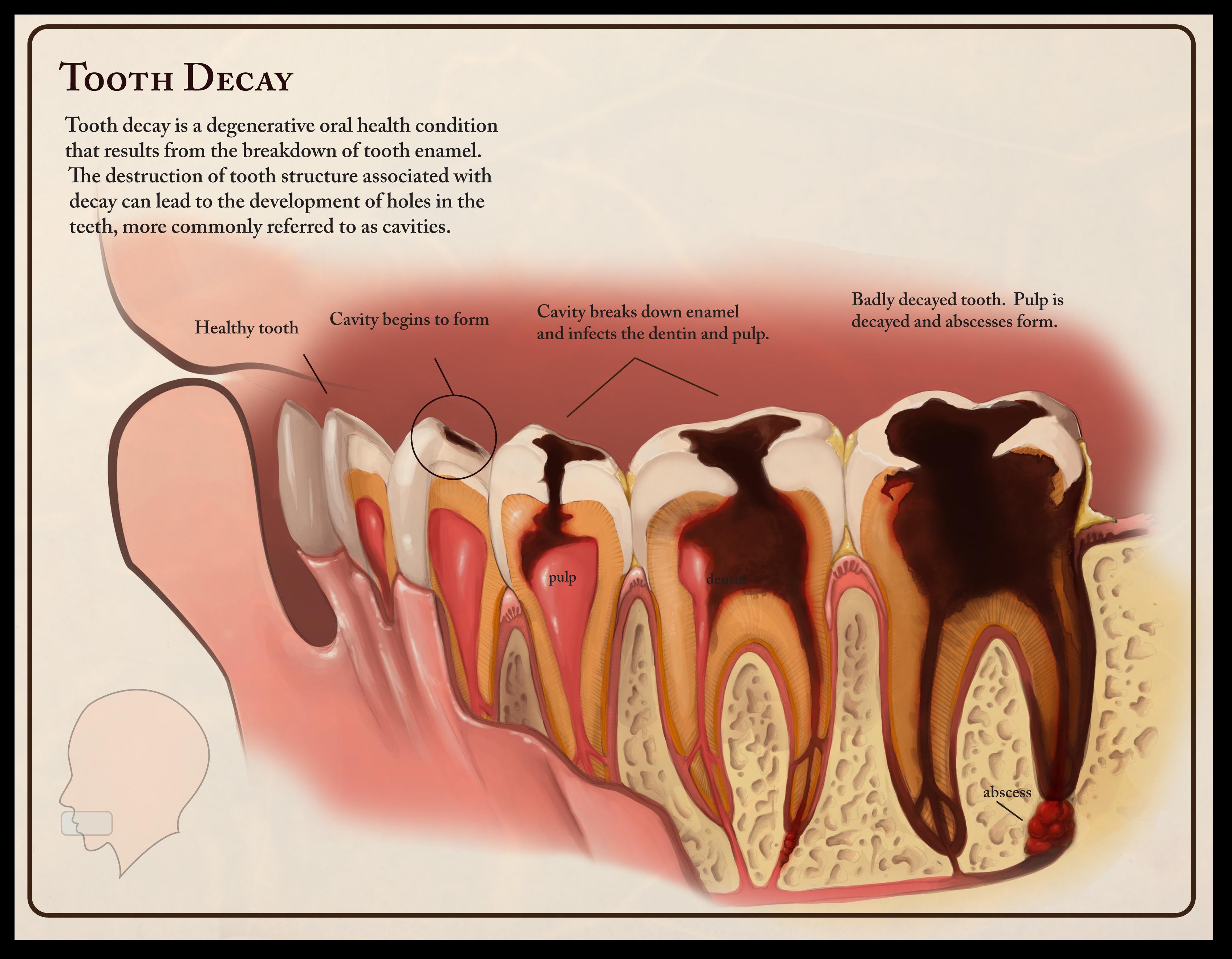dentist in idaho falls id