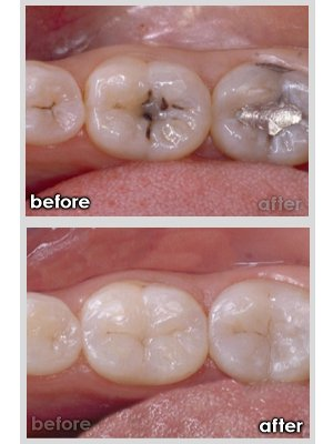 dentist in idaho falls id, teeth fillings before and after