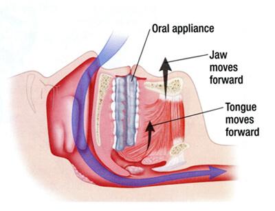 appliance to stop snoring, idaho falls dentist