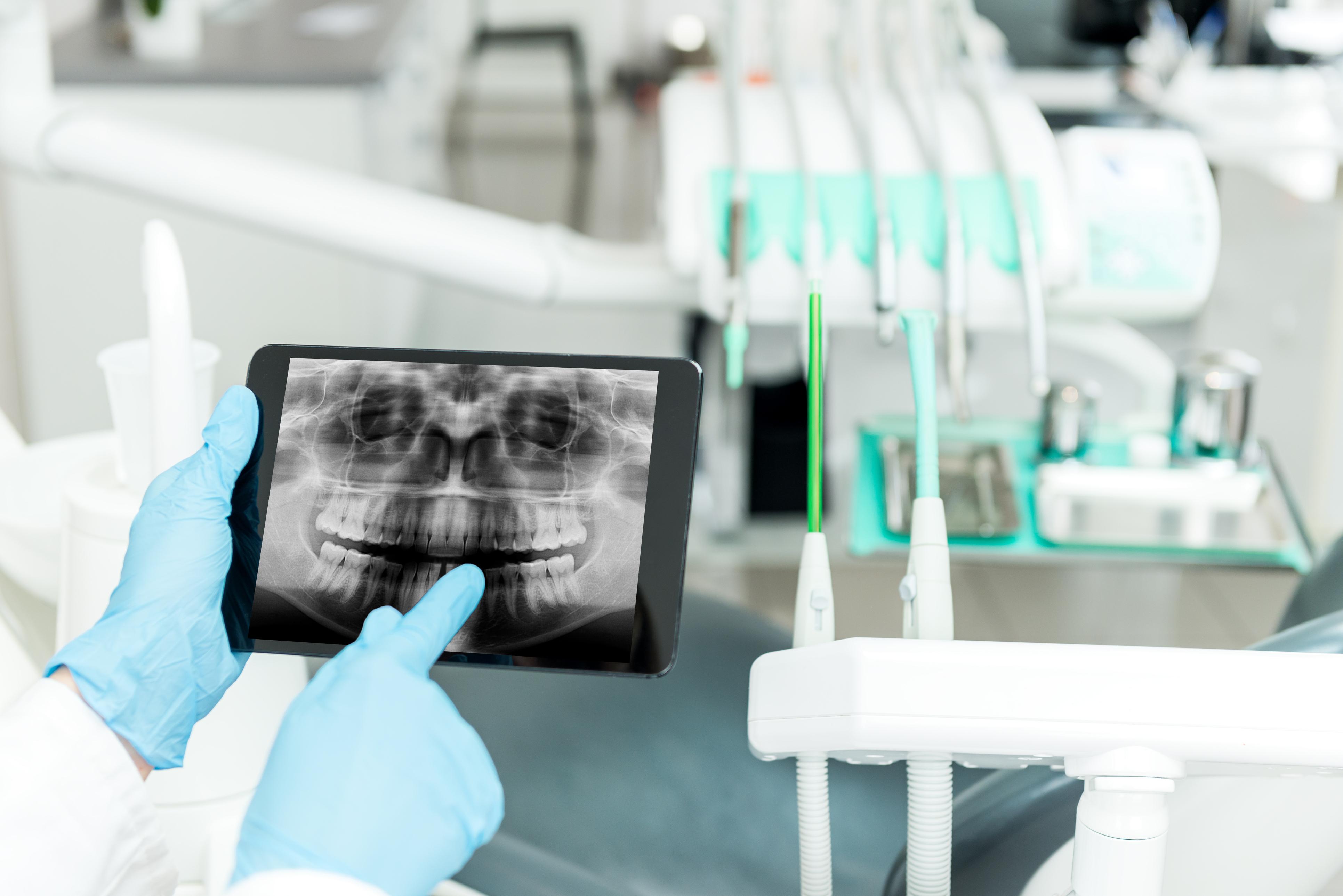 Preventative Dentistry Idaho Falls