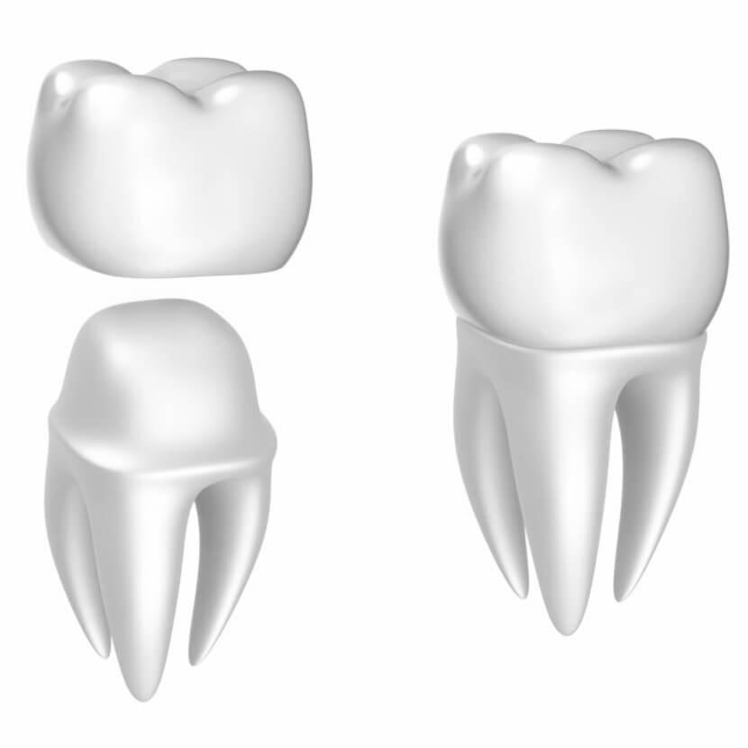 dental repair idaho falls