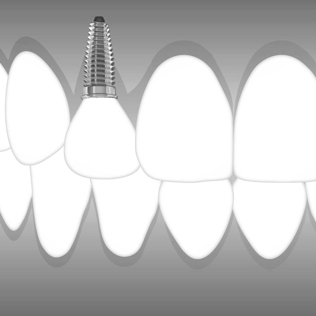 dental implants Idaho Falls